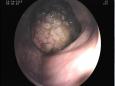 医院呼吸消化内科成功完成了巨大升结肠管状腺瘤切除