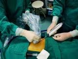 针孔取瘤 美丽无痕 ——看我院普外科实施乳腺肿物旋切演绎真正的微创